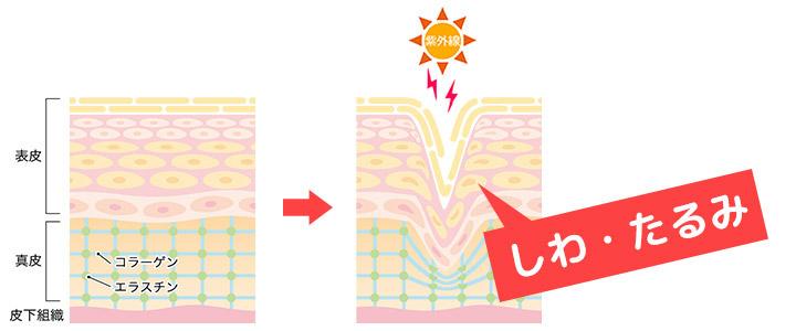 紫外線によるしわの原因